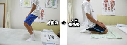 オスグット病施術例02